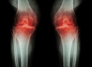 Hyaluronate Injections for knee